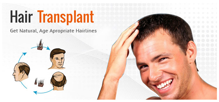 The Facts About Hair Transplantation