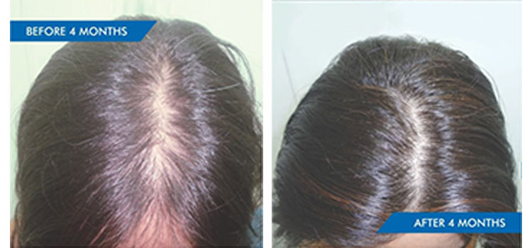 GRADE II HAIR LOSS