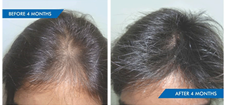 HAIR LOSS FROM CRASH DIETING