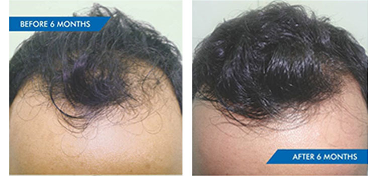 HEREDITARY HAIR LOSS