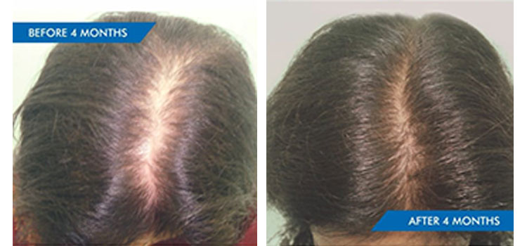 HAIR LOSS FROM THYROID IMBALANCE