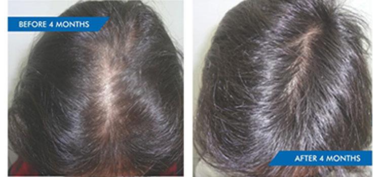 HAIR LOSS FROM THYROID IMBALANCE