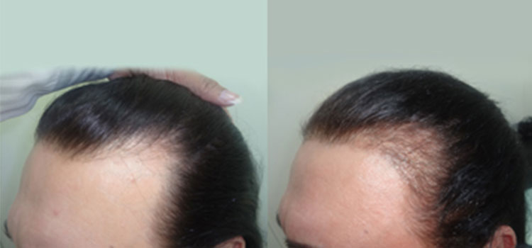 My patient has suddenly started losing more hair during the therapy?