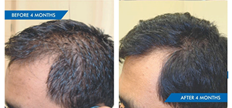 STRESS RELATED DIFFUSE THINNING