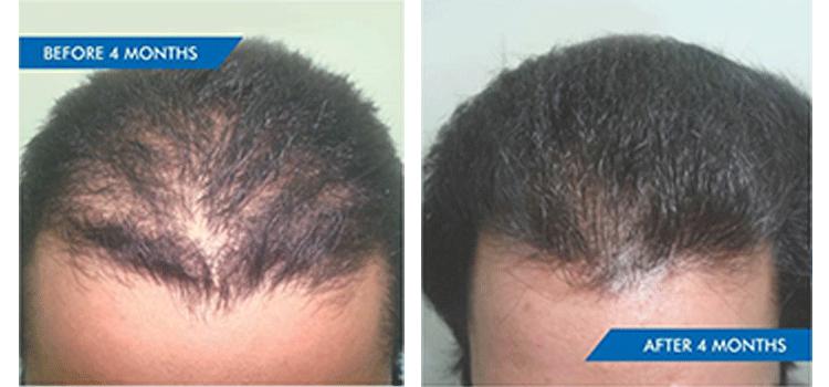 ASYMMETRIC GRADE III HAIR LOSS